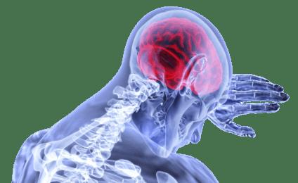 fatigue-rapporte-patient-facteur-predictif-avc-population-generale